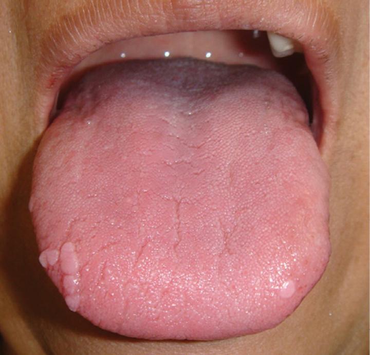 hpv wart on tongue hpv cancer human papillomavirus