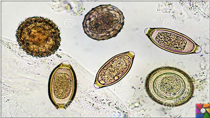 sistem parazit