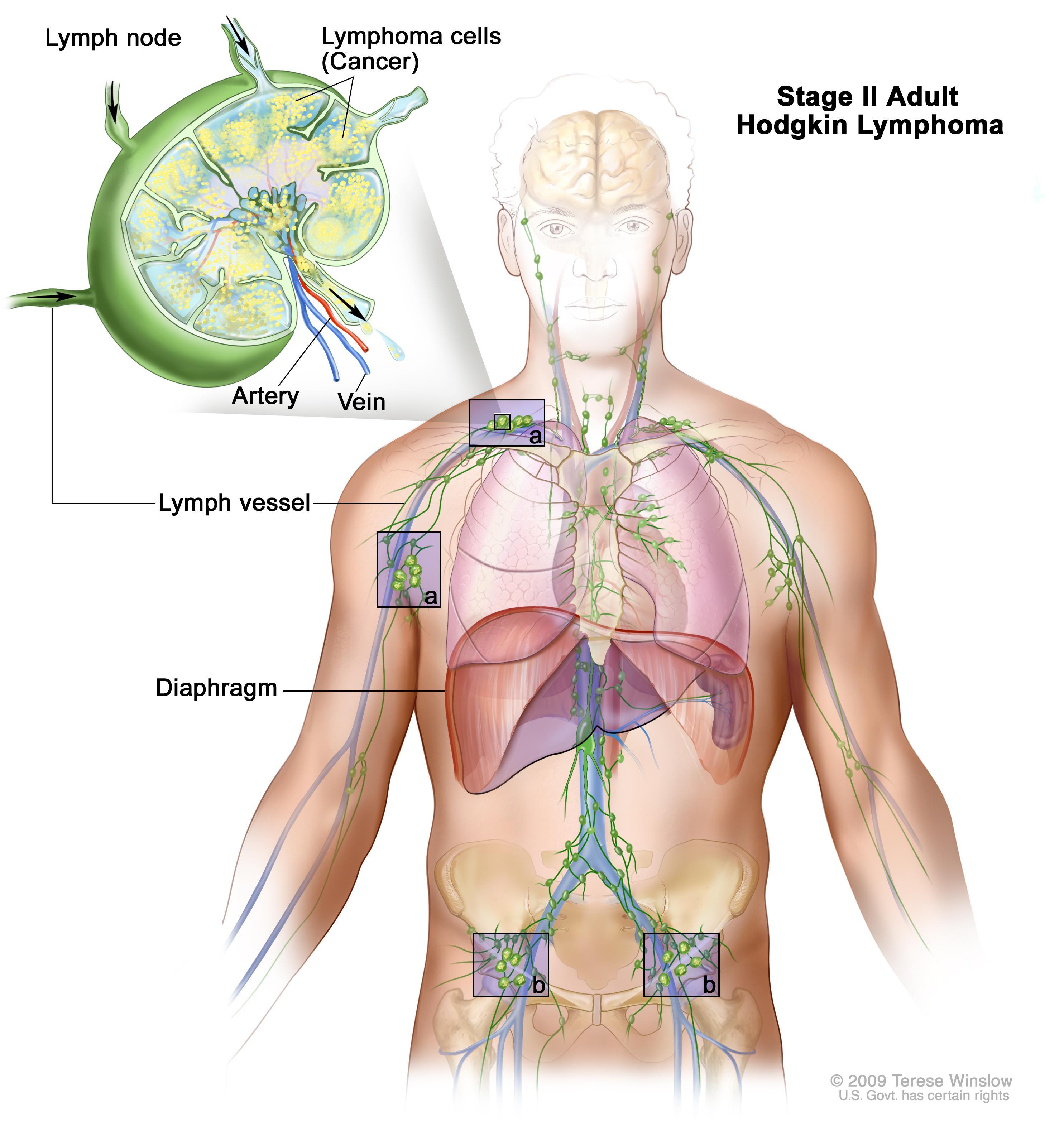 papilloma meaning bangla tratamentul omului cu vierme de castraveți