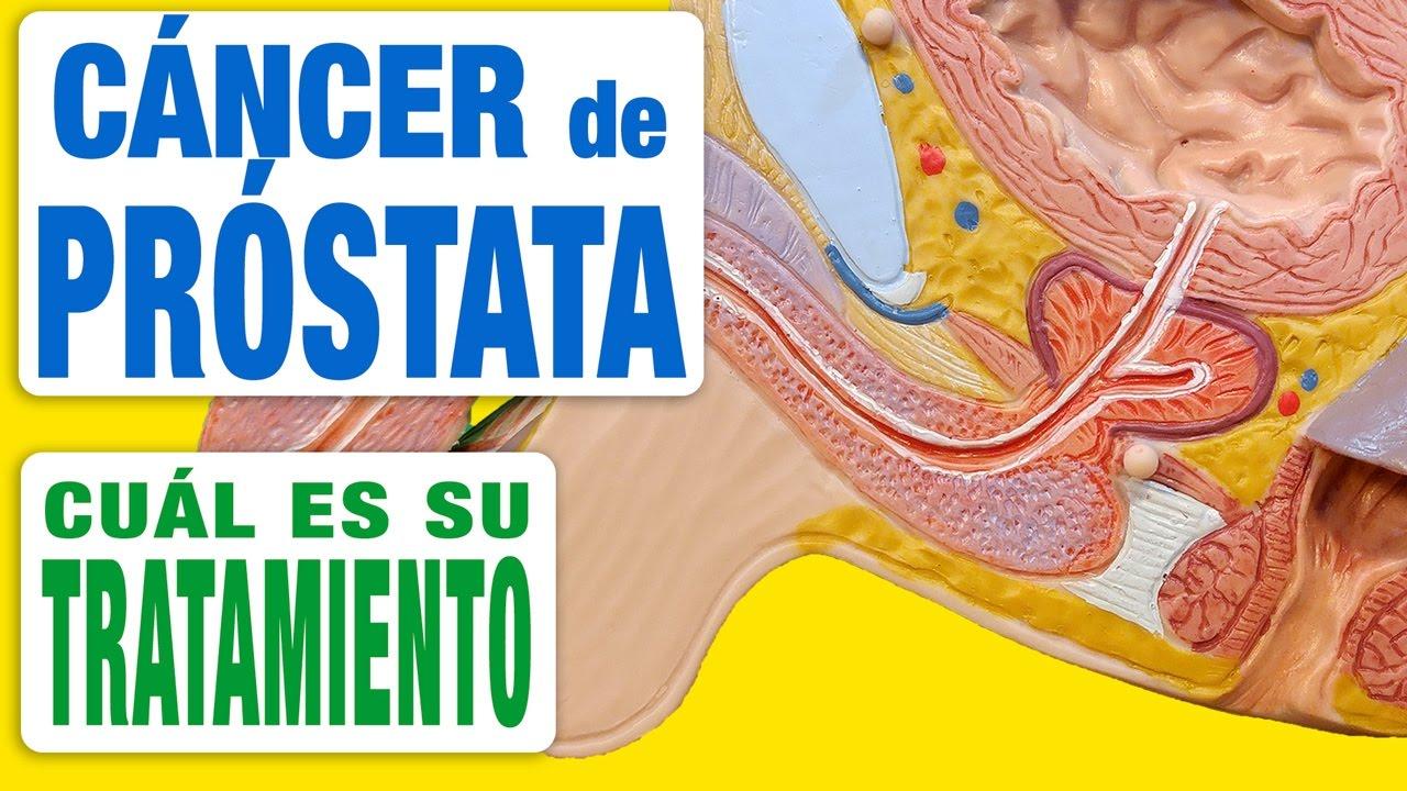 Tratamente naturiste. 6 remedii pentru afecțiunile prostatei - Antena Satelor