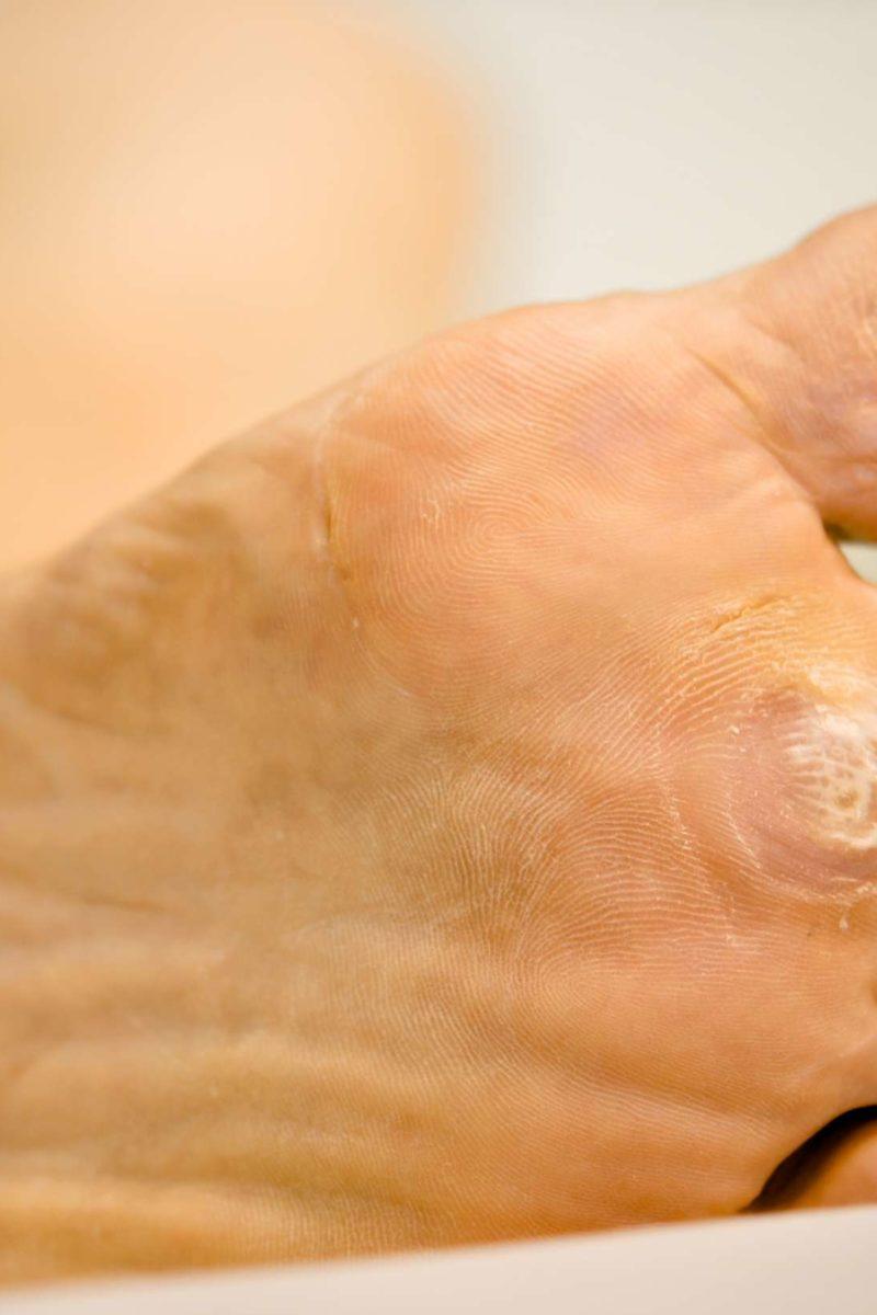 foot wart under skin