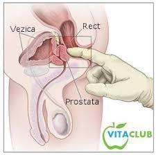 Cancerul de prostata avansat: optiuni de tratament - Farmacia Ta - Farmacia Ta
