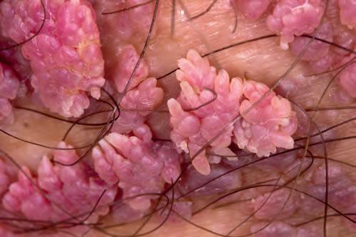 veruci exofitice sau genitale