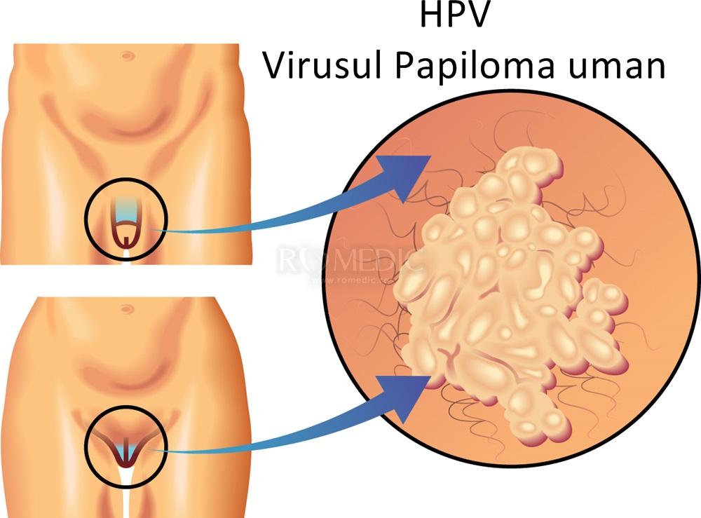 condiloamele din uter cauzează aptima hpv high risk rna
