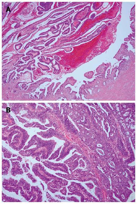 Atlas of Breast Pathology - coboramlaprima.ro