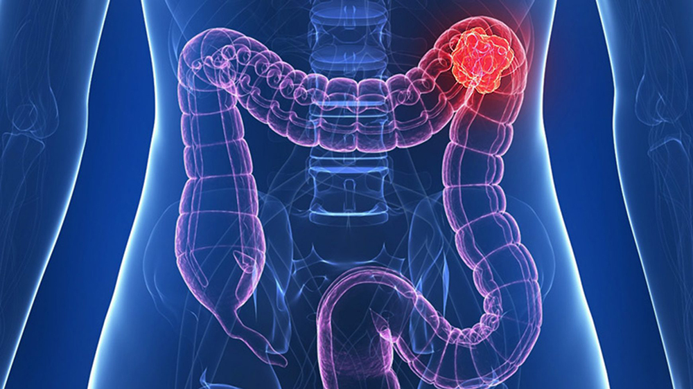 cancerul de colon simptome tratament