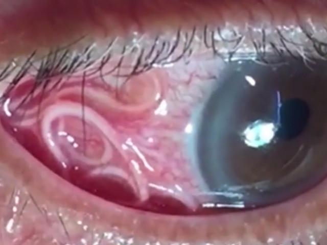 Viermi în ochii oamenilor - simptomele, căile de infecție și de tratament