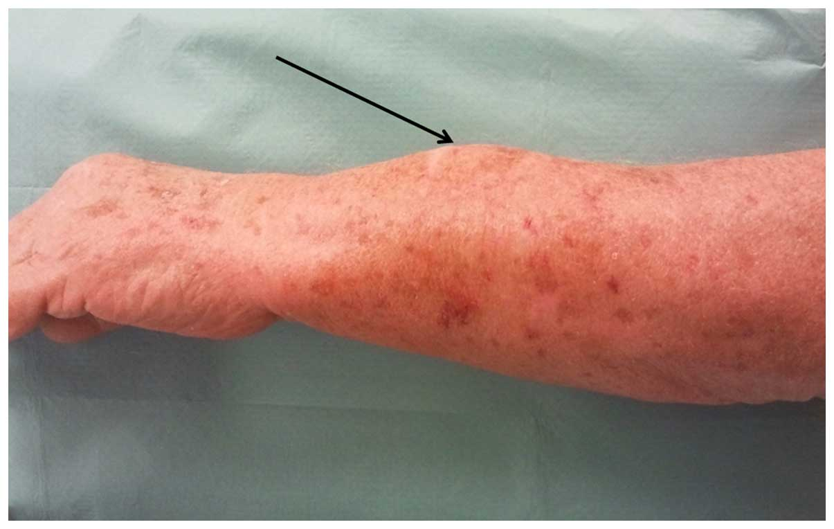 Sarcoma cancer of the soft tissue.