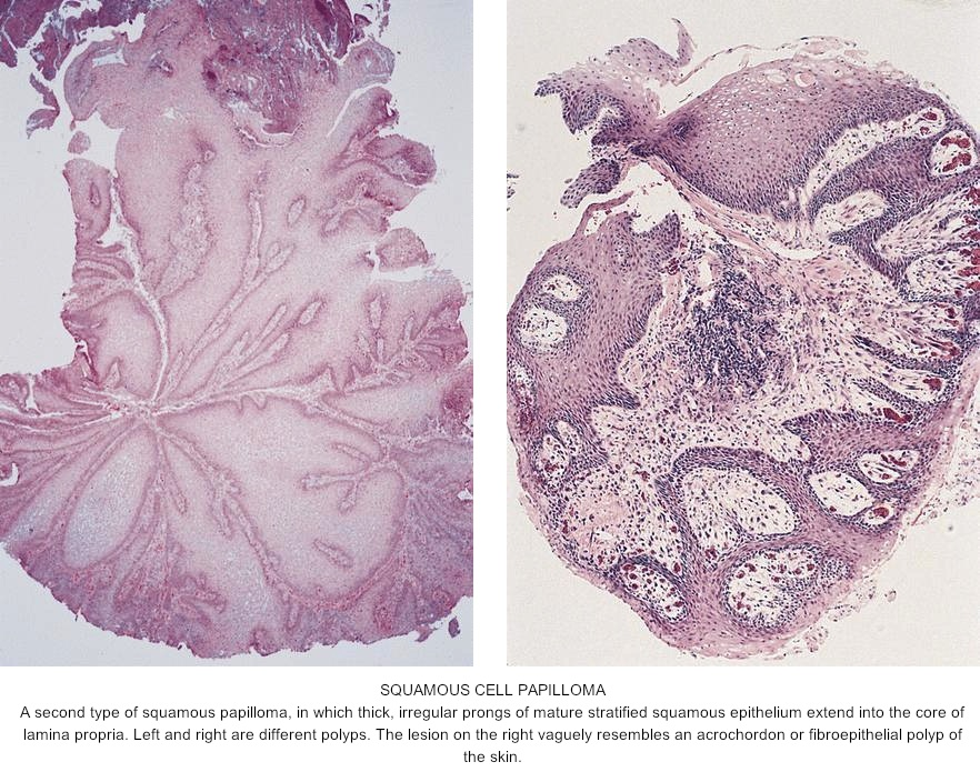 squamous papilloma libre pathology