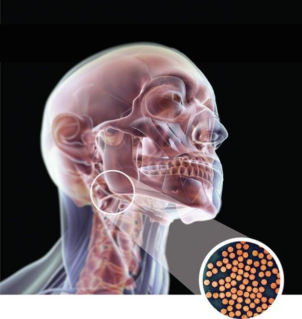 can hpv cause bone cancer caută ajutor cu enterobioza
