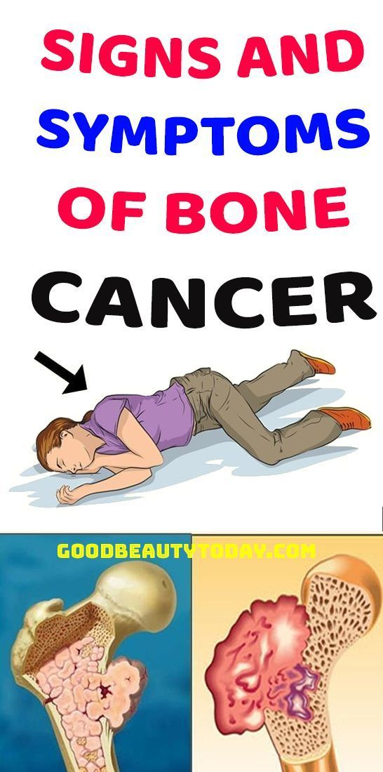 coboramlaprima.ro 30 (1/) by Versa Media - Issuu, Does hpv cause bone cancer
