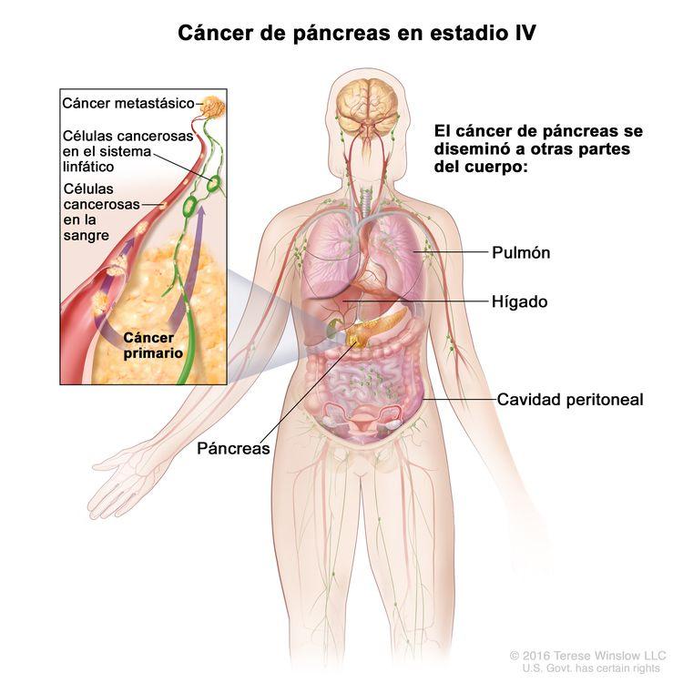 cancer bucal hay 3000 casos por ano