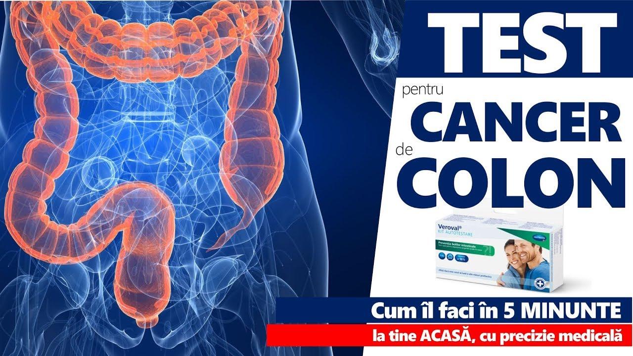 cancer de colon tratament