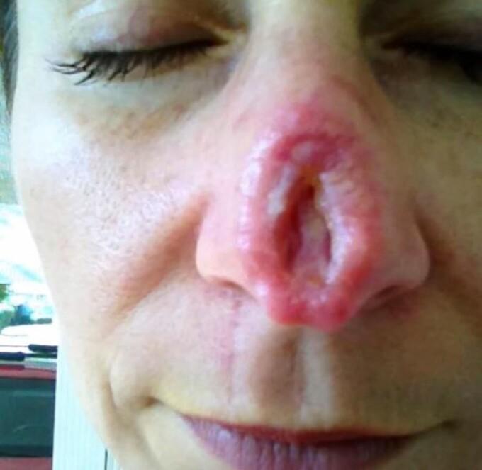 Crema cancer piele tratament