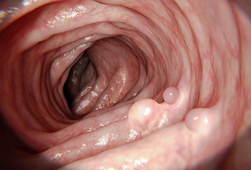 cancer of rectal polyps oxiurose diagnostico e tratamento
