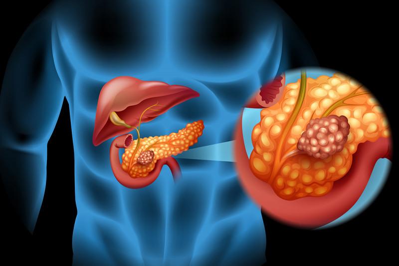 cancer pancreatic body papilloma virus terapia uomo