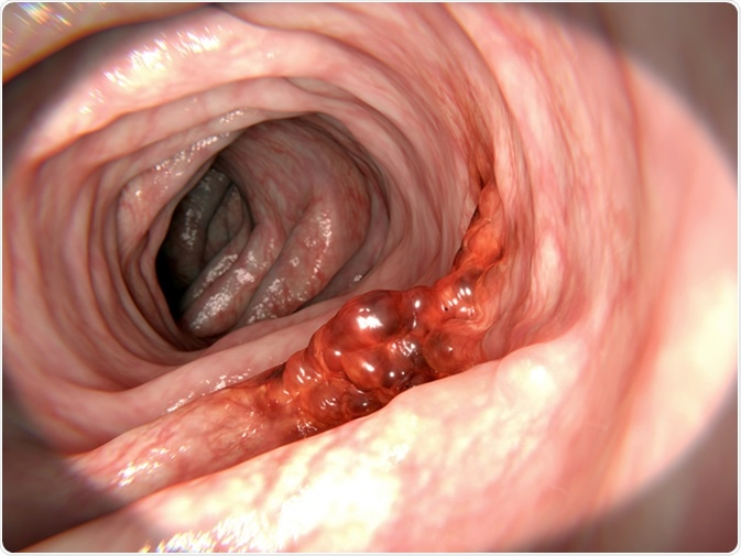 rectal cancer of cheloo cronica unei