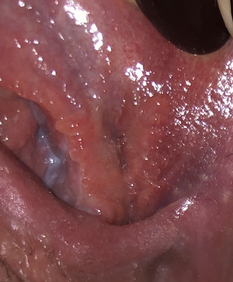 Virus herpes simplex