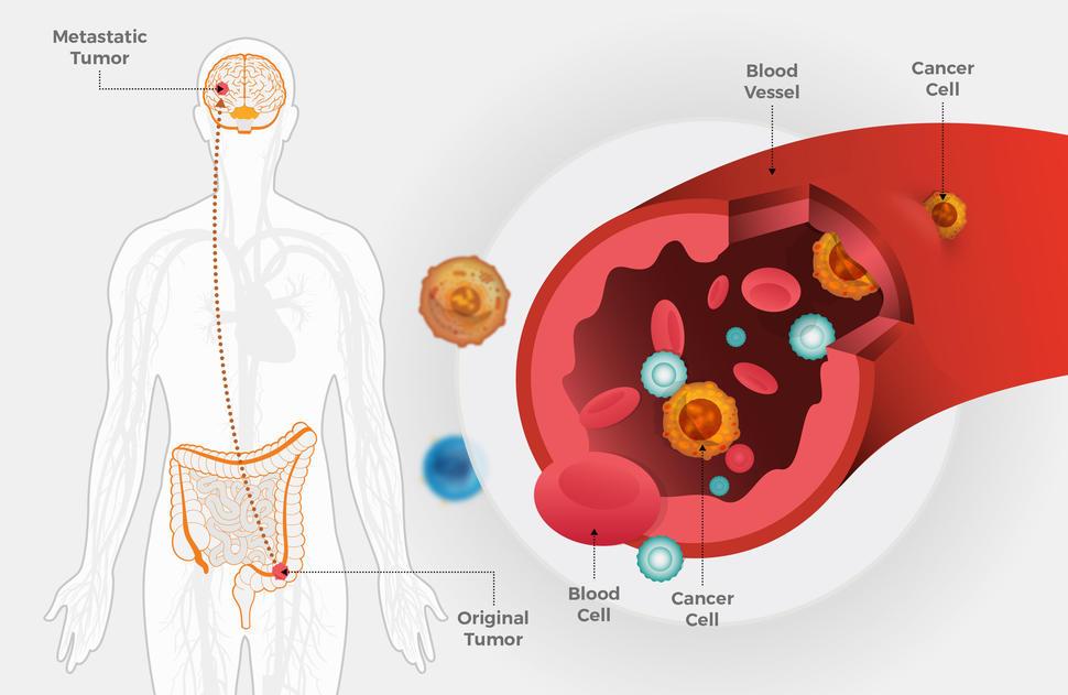 hpv e cancer colorretal un medicament de viermi tetramisol