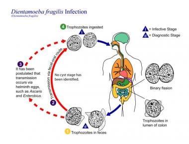 Enterobius vermicularis signs and symptoms - Enterobius vermicularis treatment medscape