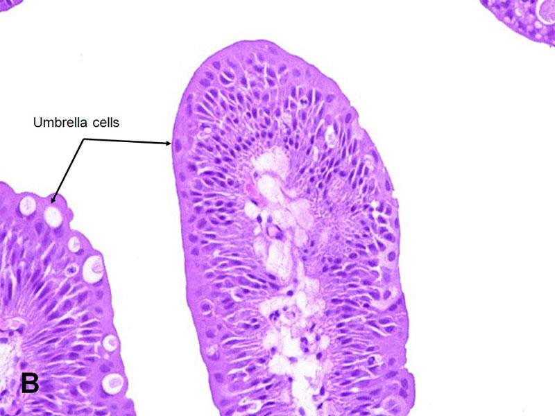 Urothelial papilloma hpv - Viermisori oxiuri tratament