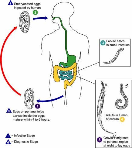 Crijevni helminti. Crijevni paraziti kod pasa, Рубрика: Opisthorchozic bum