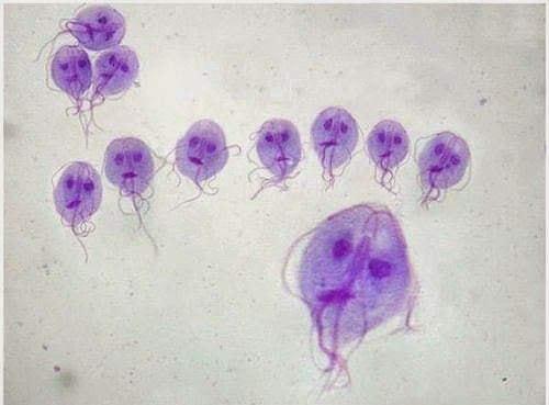 papilloma vescicale peduncolato tratamente eficiente pentru viermi la adulți