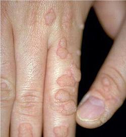 Hpv femme traitement. Ginecologie MGVI LR