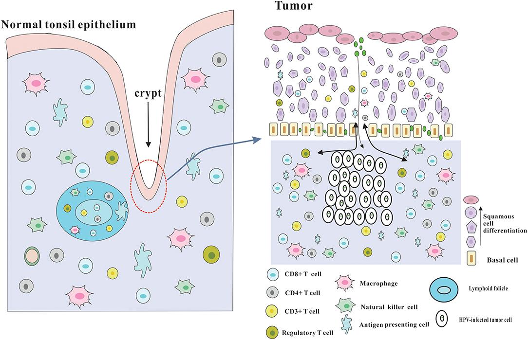 Hpv oncogene positif