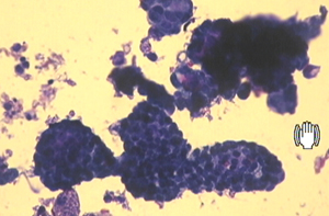 intraductal papilloma cytology