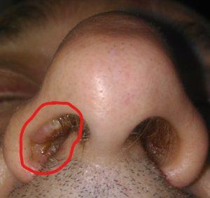 nasal vestibular papilloma