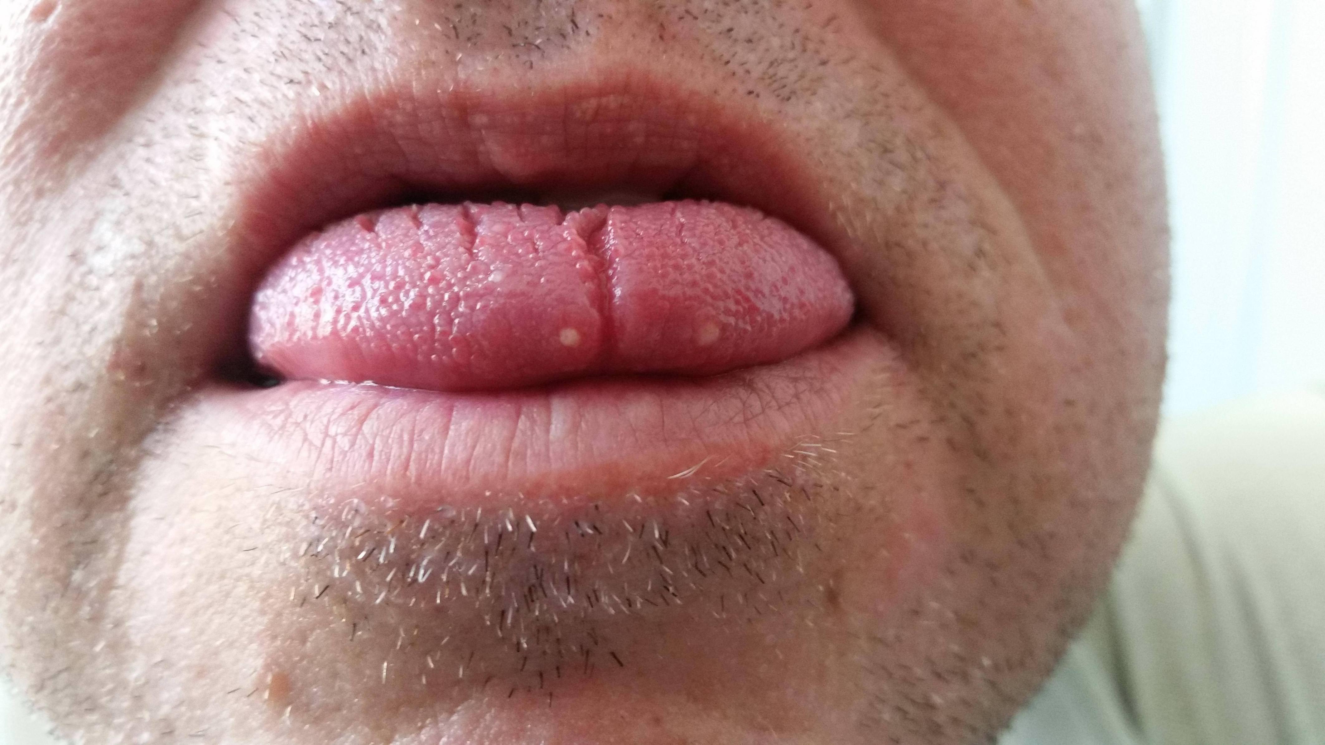 negi pe limba prezervativ și condilom