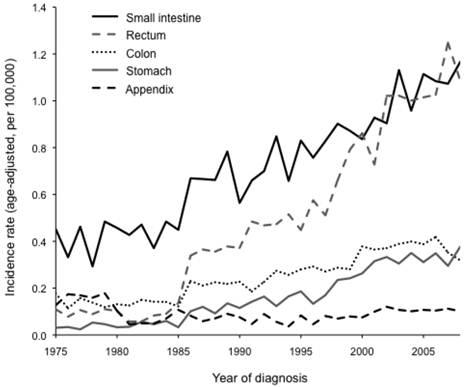 neuroendocrine cancer age parazitii facebook