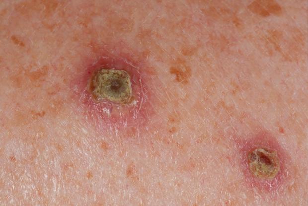 Papilloma skin rash - Erupţie - Traducere în engleză - exemple în română | Reverso Context
