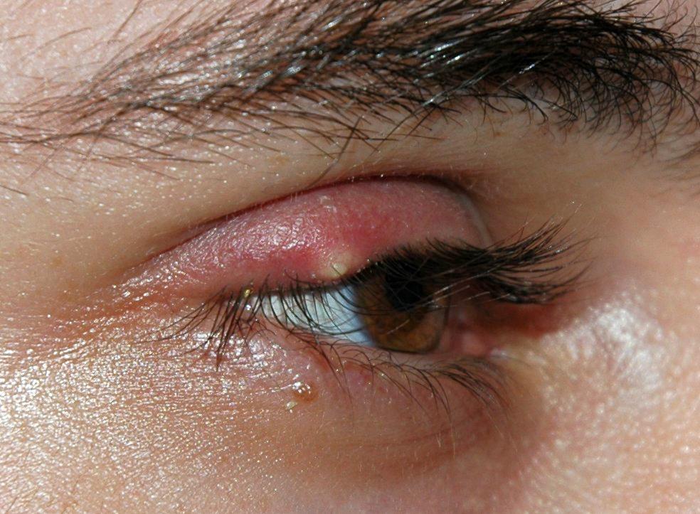 Papilloma palpebrale occhio