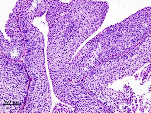 papilloma urotheliale opis în anus verucile genitale