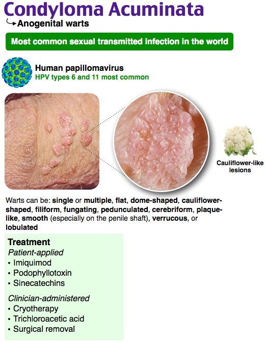 papilloma vs condyloma