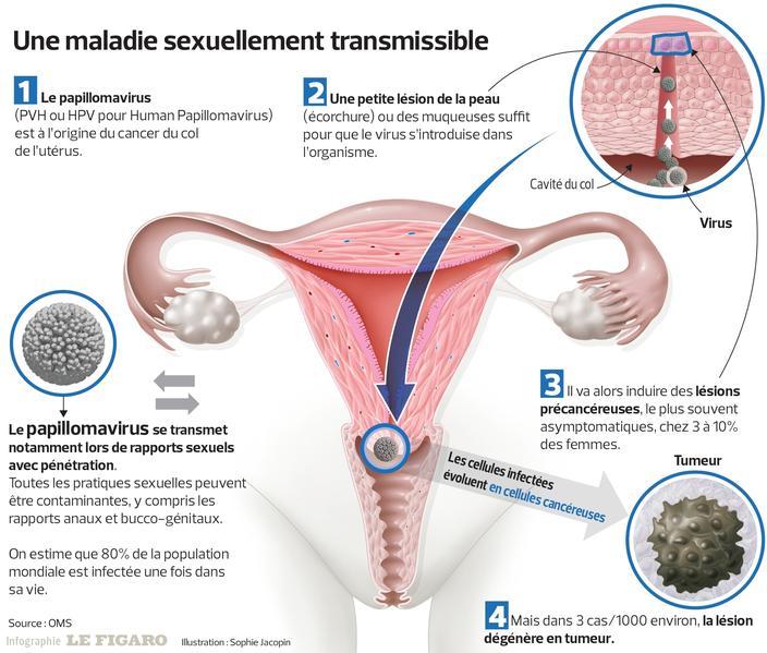 papillomavirus pour l homme