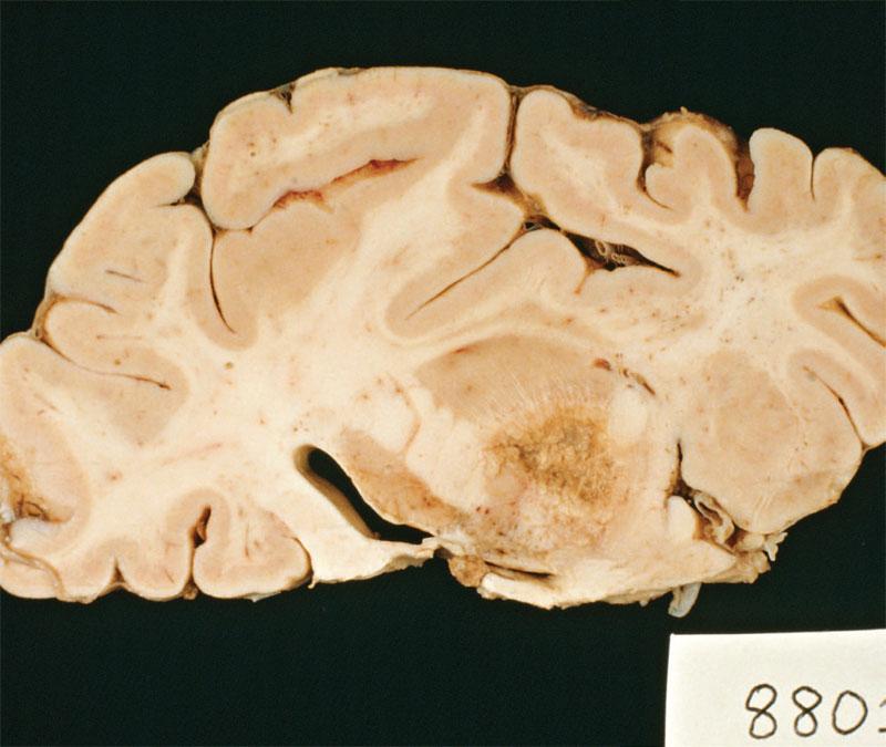 paraziți în creier laryngeal papillomatosis bevacizumab