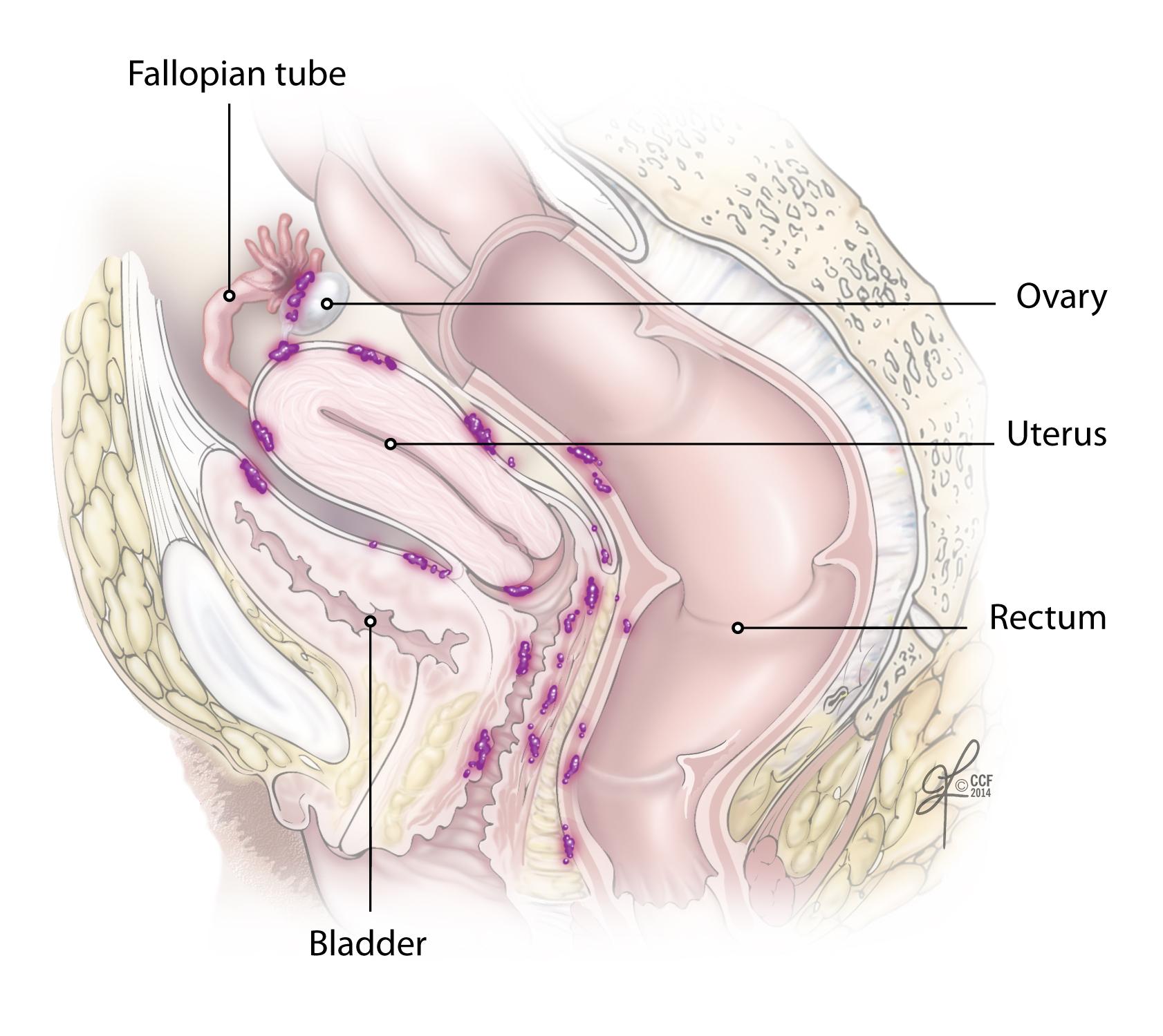 Cancer peritoneal spread