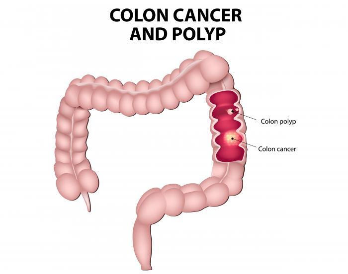 rectal cancer of condilom la vagin la femei
