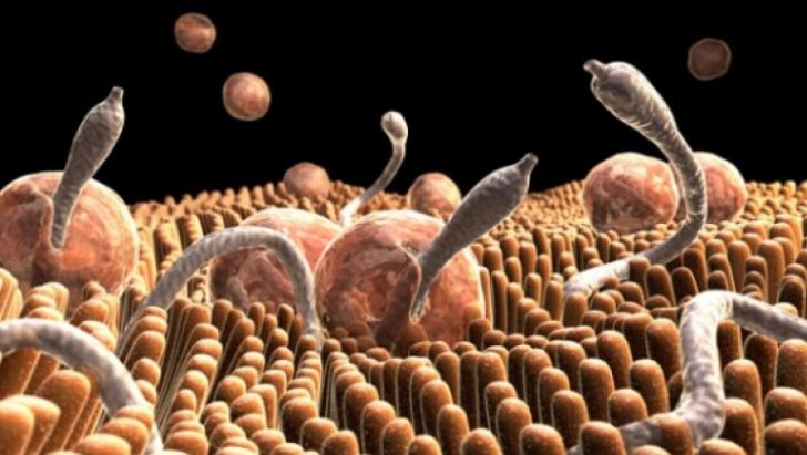 Cum să tratezi paraziții în stomac - Viermii si parazitii intestinali