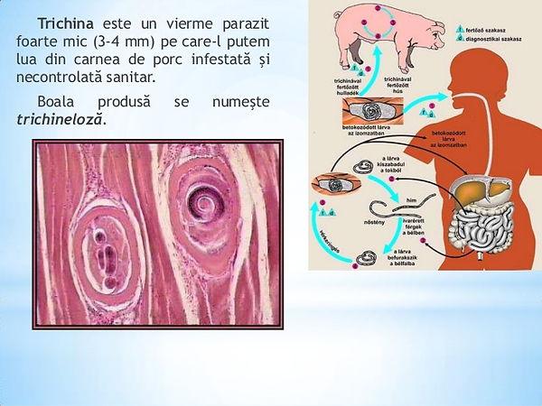tratamentul parazit al stilului de viață sănătos infestare cu viermi