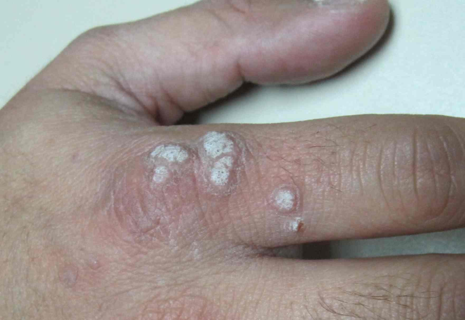 virus del papiloma y dermatitis