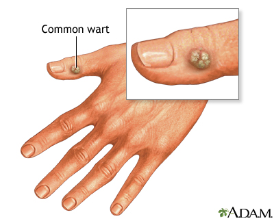 wart related virus sarcoma cancer meaning